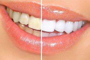 Cách tẩy trắng răng hiệu quả tại nhà